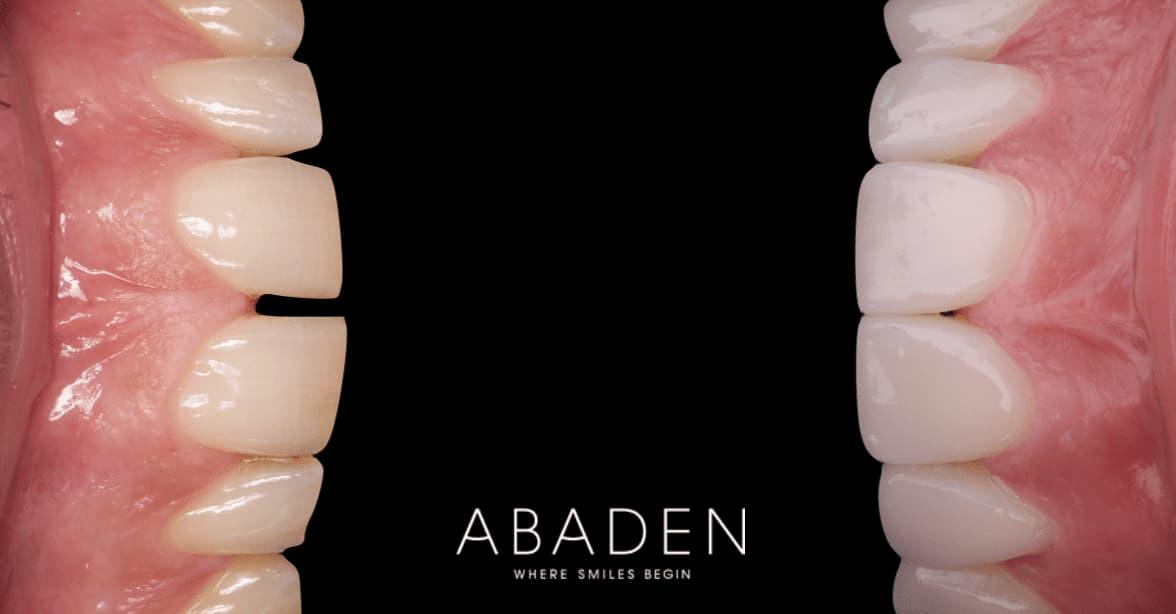 ¿Cuál es el procedimiento a seguir para la colocación de carillas dentales?