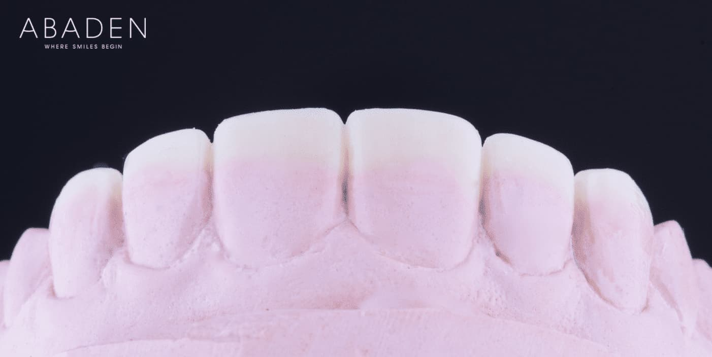 Carillas dentales: ¿Qué ventaja tiene su uso?