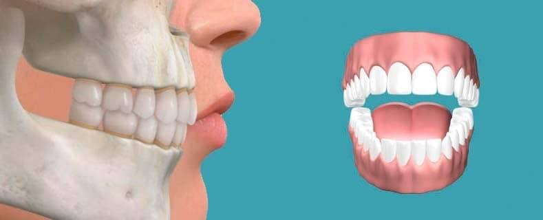 ¿Qué tipos de oclusión dental hay?