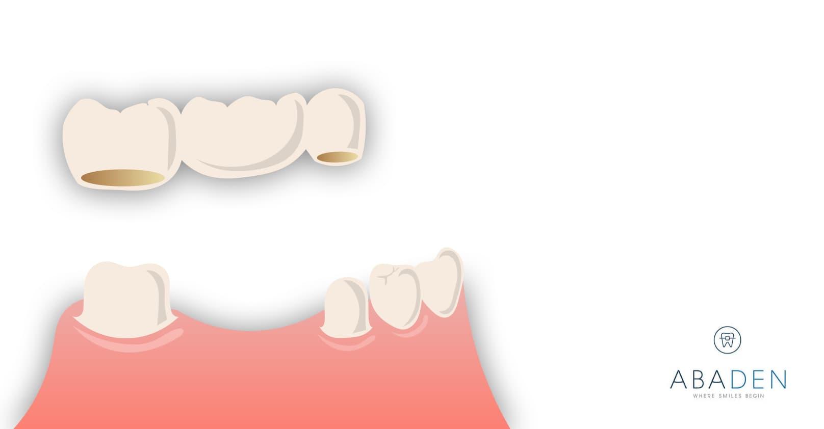 Cómo se lleva a cabo la colocación de un puente dental