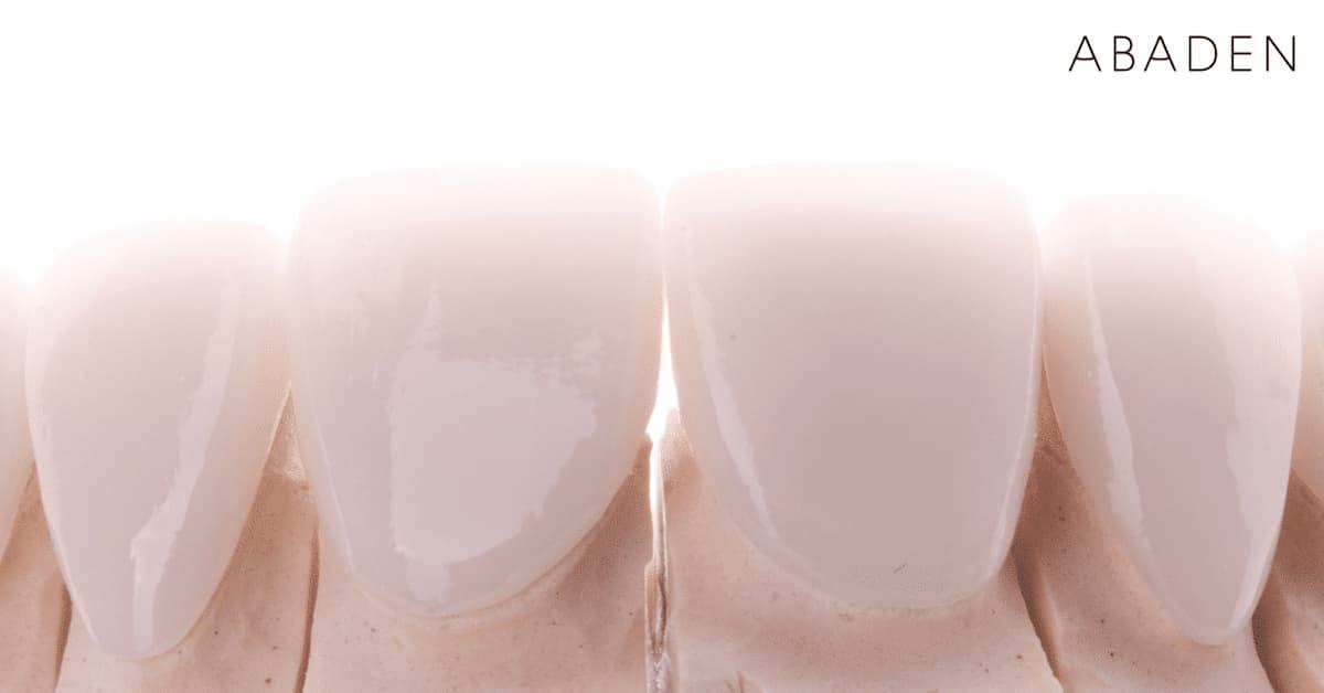Contraindicaciones carillas dentales