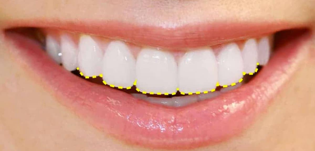 ¿En qué consiste el contorneado dental?
