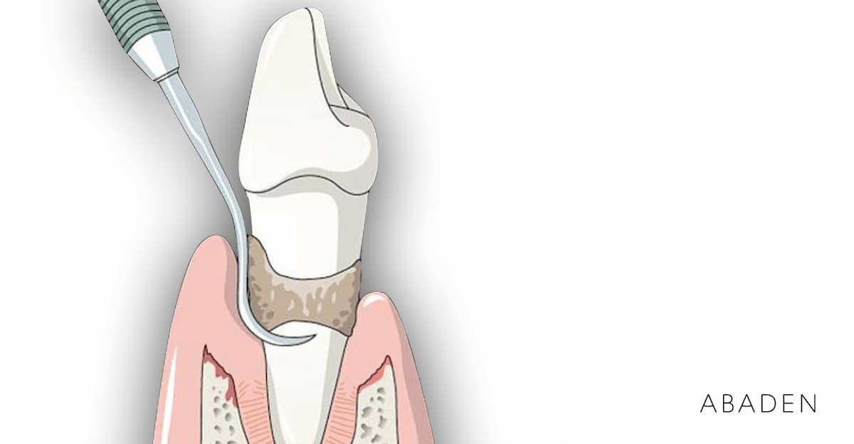 Cuándo es necesario realizarse un curetaje dental