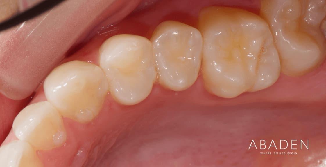 Cuántos dientes tenemos