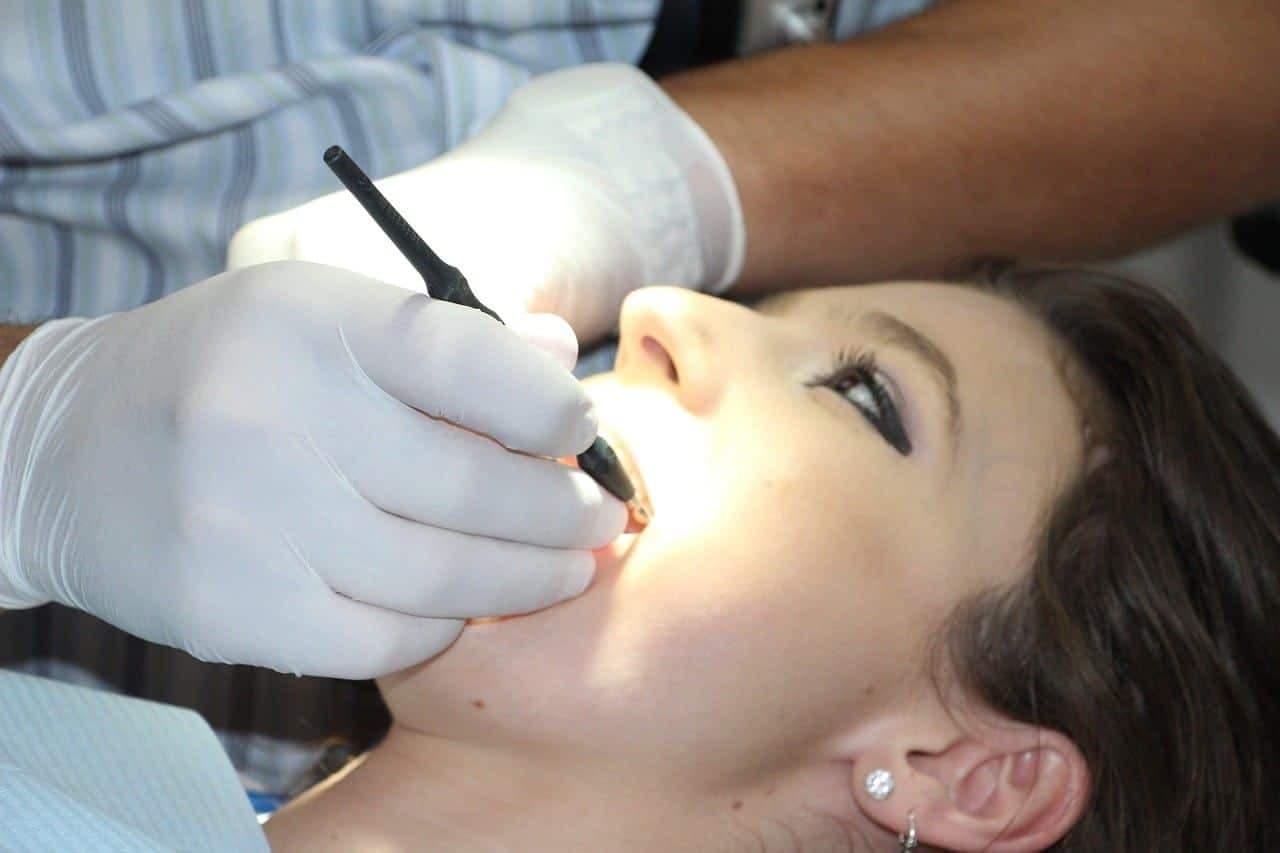 Causas y consecuencias de los dientes podridos