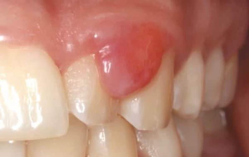Épulis dental, ¿qué es?