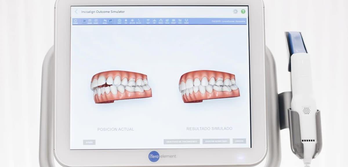 ¿Qué es el escáner intraoral iTero? Su uso en ortodoncia Invisalign