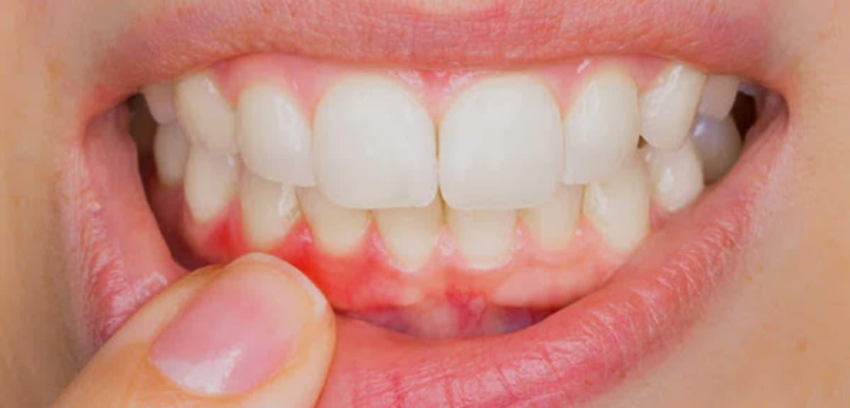 Tratamientos para mejorar la estética de las encías