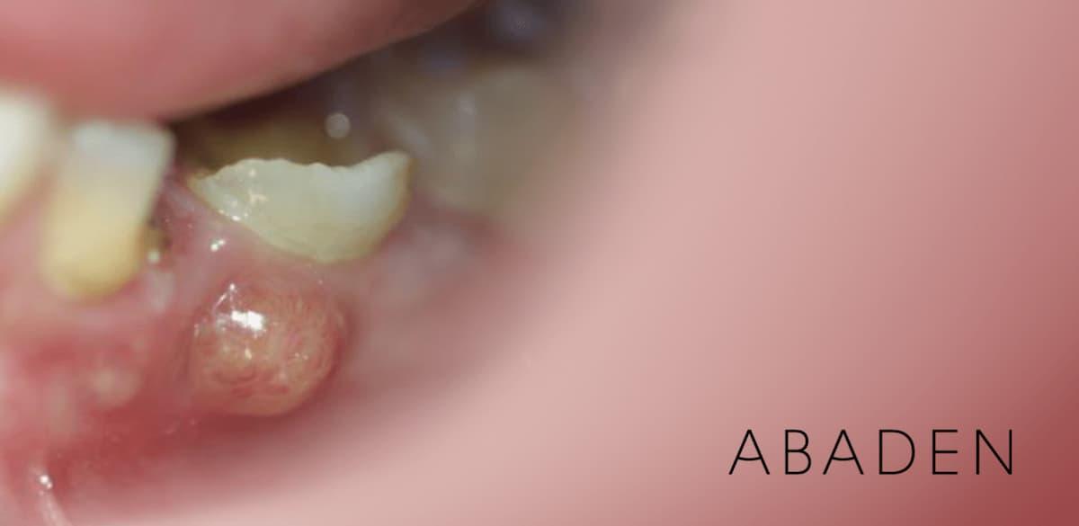 ¿Qué tratamiento aplicar para un flemón dental?