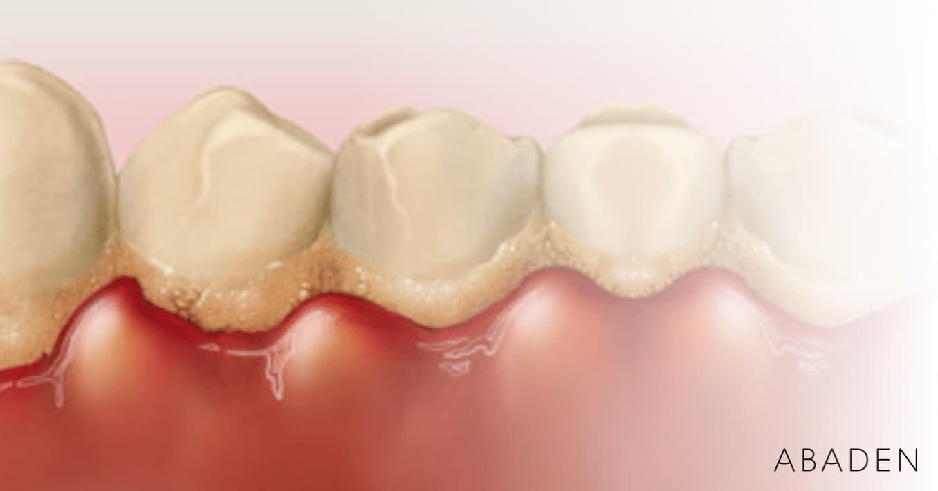 Mejores tratamientos para la gingivitis