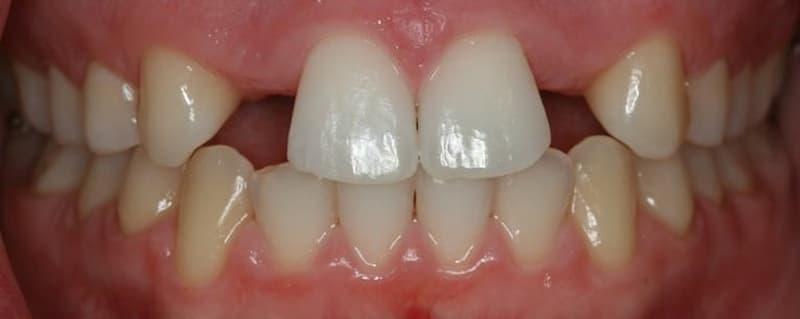 ¿En qué consiste la hipodoncia?
