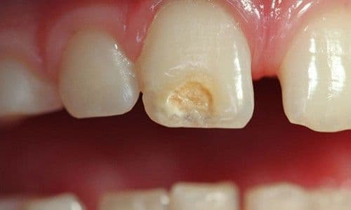 ¿Qué es la hipoplasia dental?