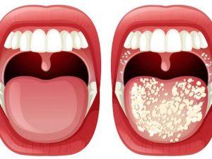 hongos en la boca