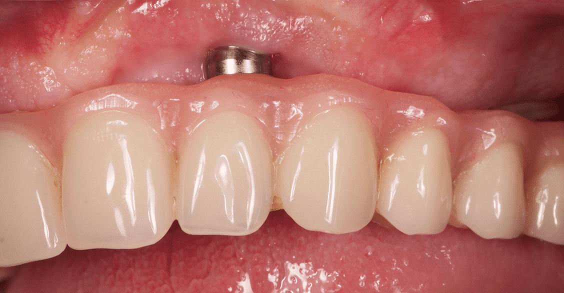 Implantes dentales – Movilidad, visibilidad o rotura de un implante