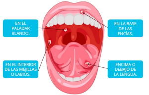 llagas en la lengua