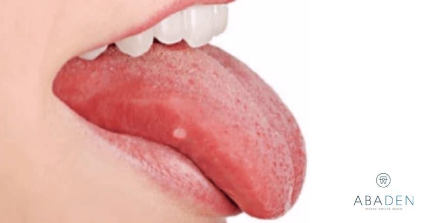 Cómo curar las llagas en la lengua