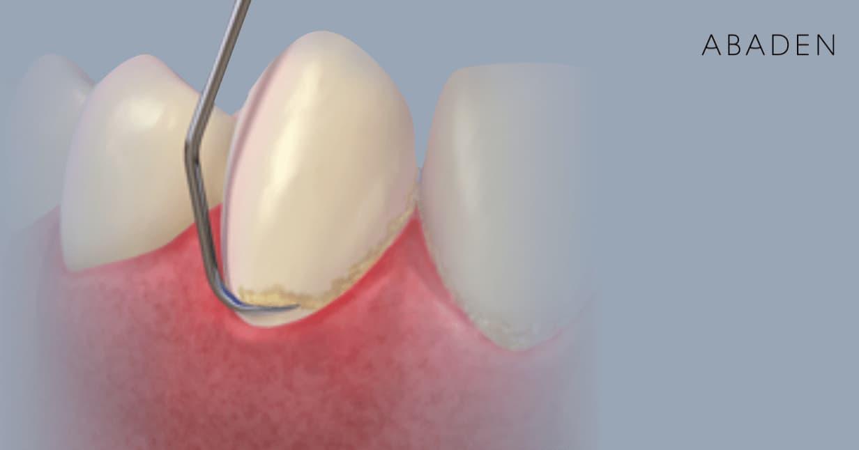 Material utilizado para una tartrectomía