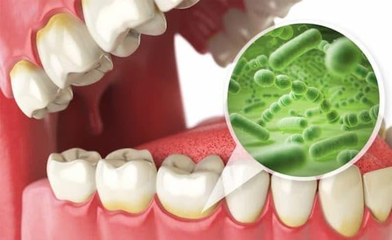 ¿Qué es la microflora oral?