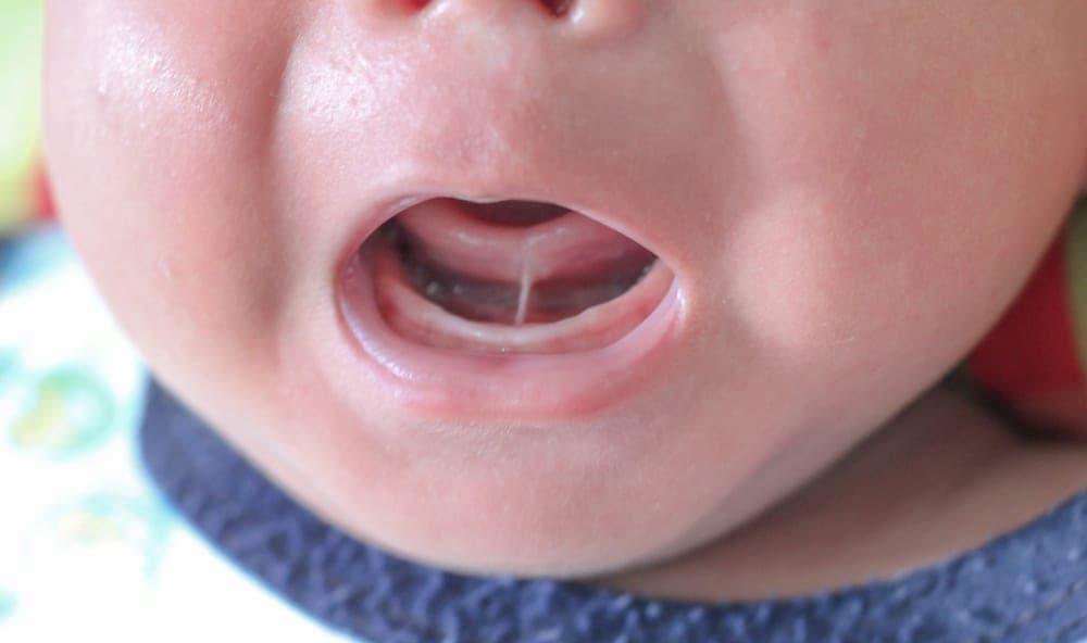 ¿Qué es la microglosia?