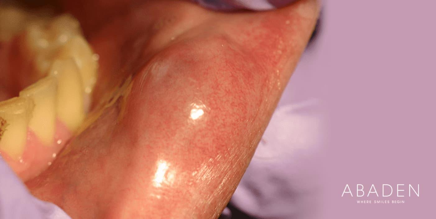 ¿Cómo se cura el mucocele?