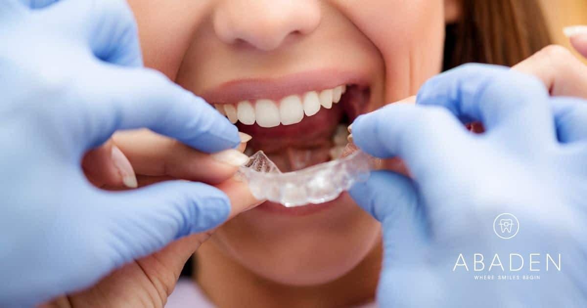 Cómo y cuándo se mueven los dientes con ortodoncia invisible