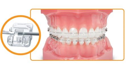 Problemas que se tratan con ortodoncia