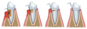 precio curetaje dental