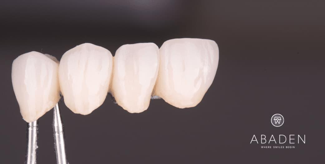 Cómo conocer el precio de fundas dentales