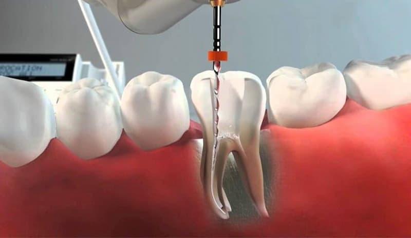 Precio Endodoncia: Comparativa precio endodoncia Sanitas, Vitaldent, Adeslas