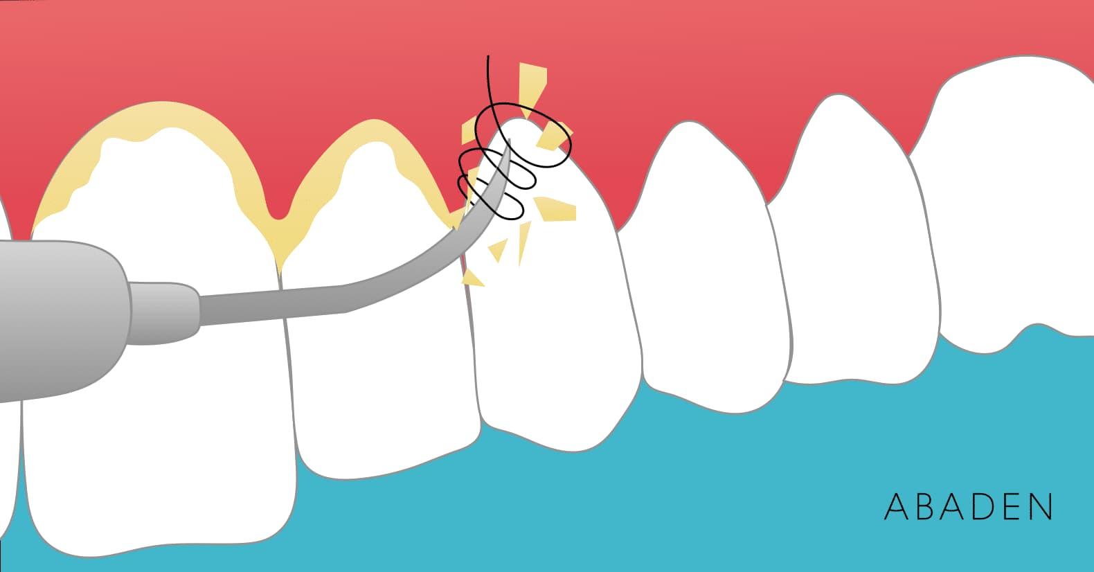 Qué es la profilaxis dental