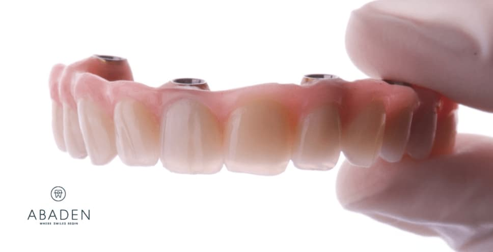 ¿Qué es una prótesis híbrida sobre implantes?