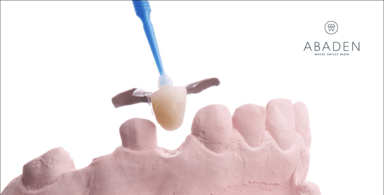 Prótesis dental info: todo lo que necesitas saber