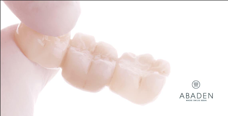 Ventajas y desventajas del puente dental fijo