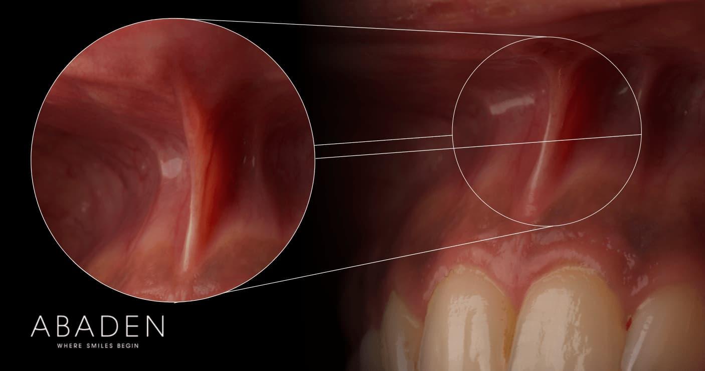 Qué es la frenectomía