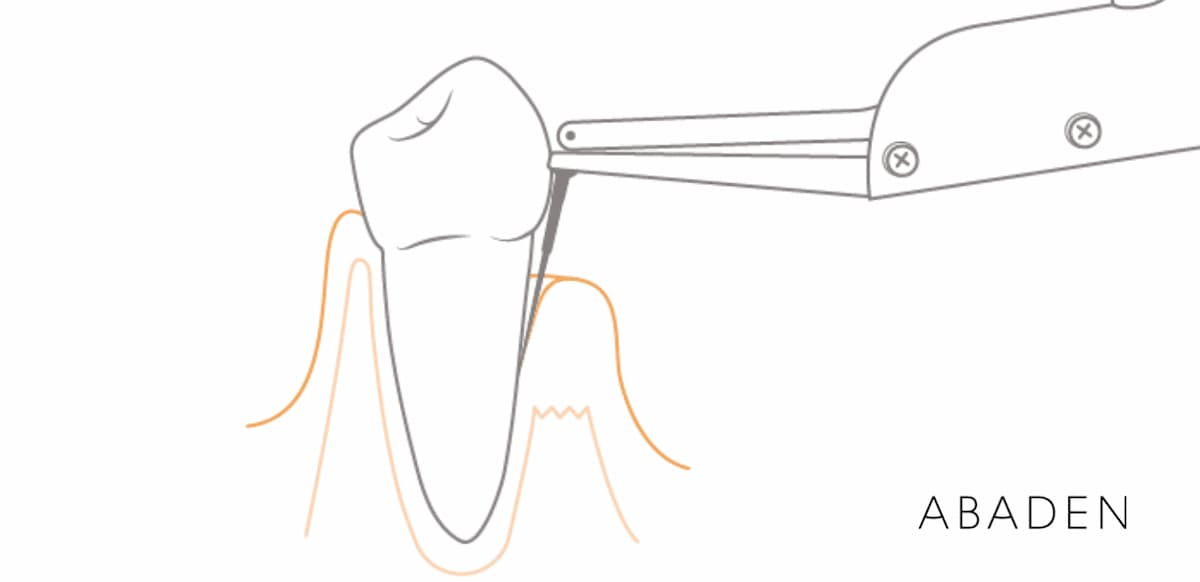 Qué es una bolsa periodontal