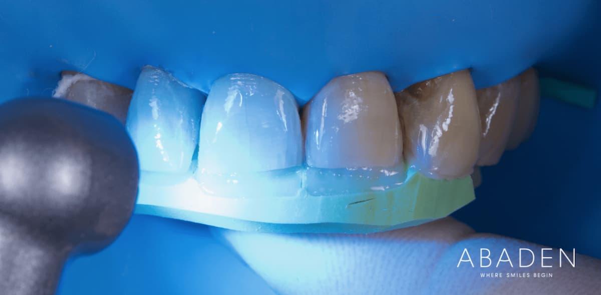 Qué es una reconstrucción dental