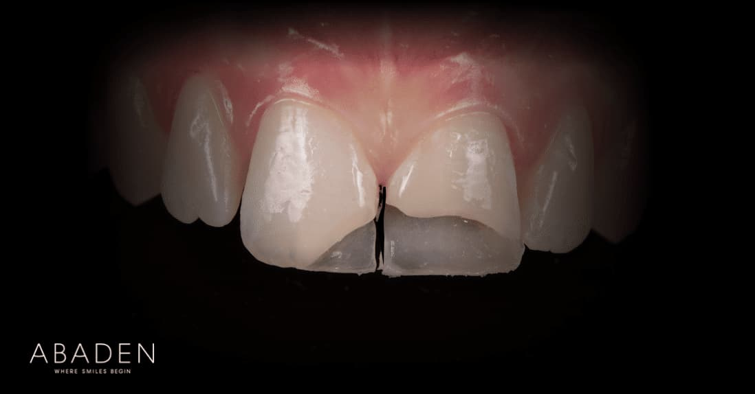 Cómo es una reconstrucción dental