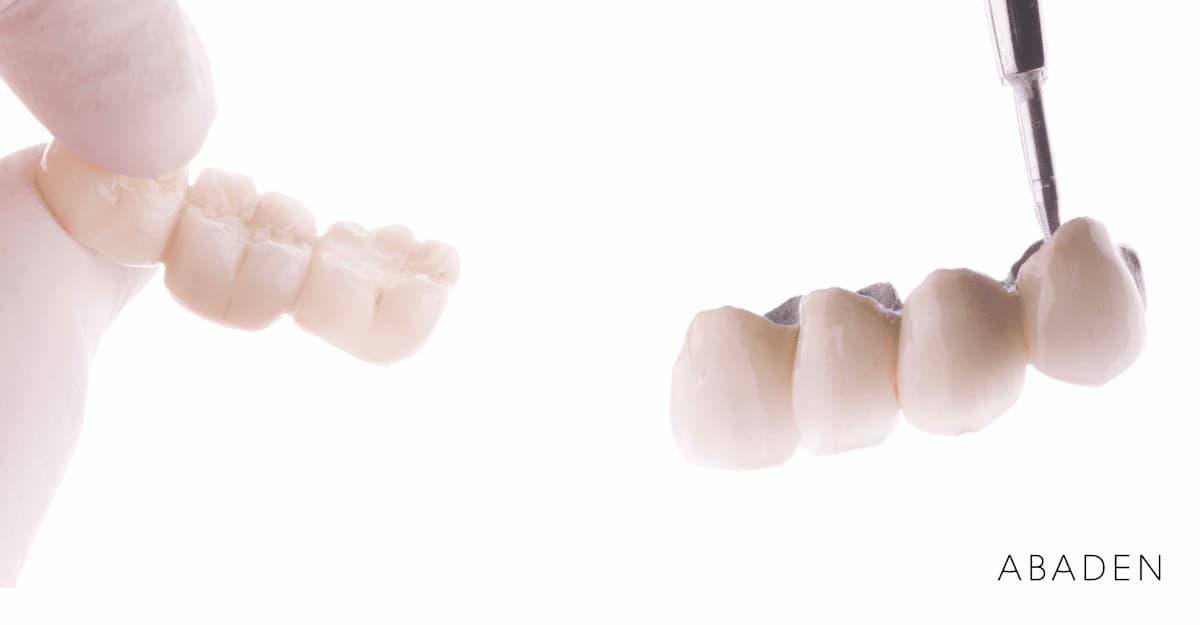 ¿Qué tipos de puente dental están disponibles?