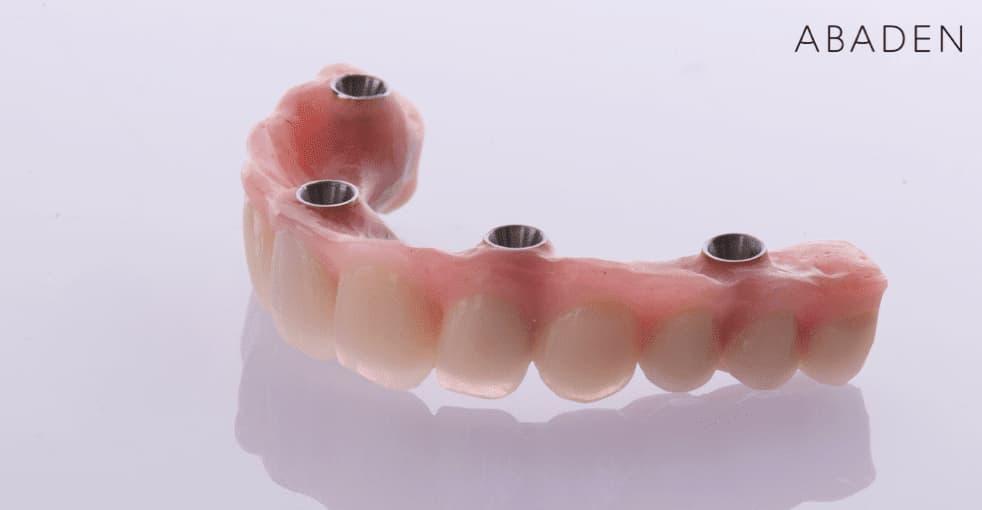 Cuáles son los tipos de dentadura postiza existentes