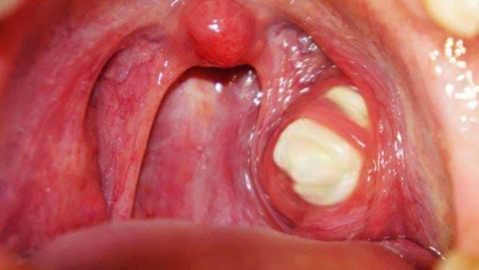 Causas y síntomas de los tonsilolitos
