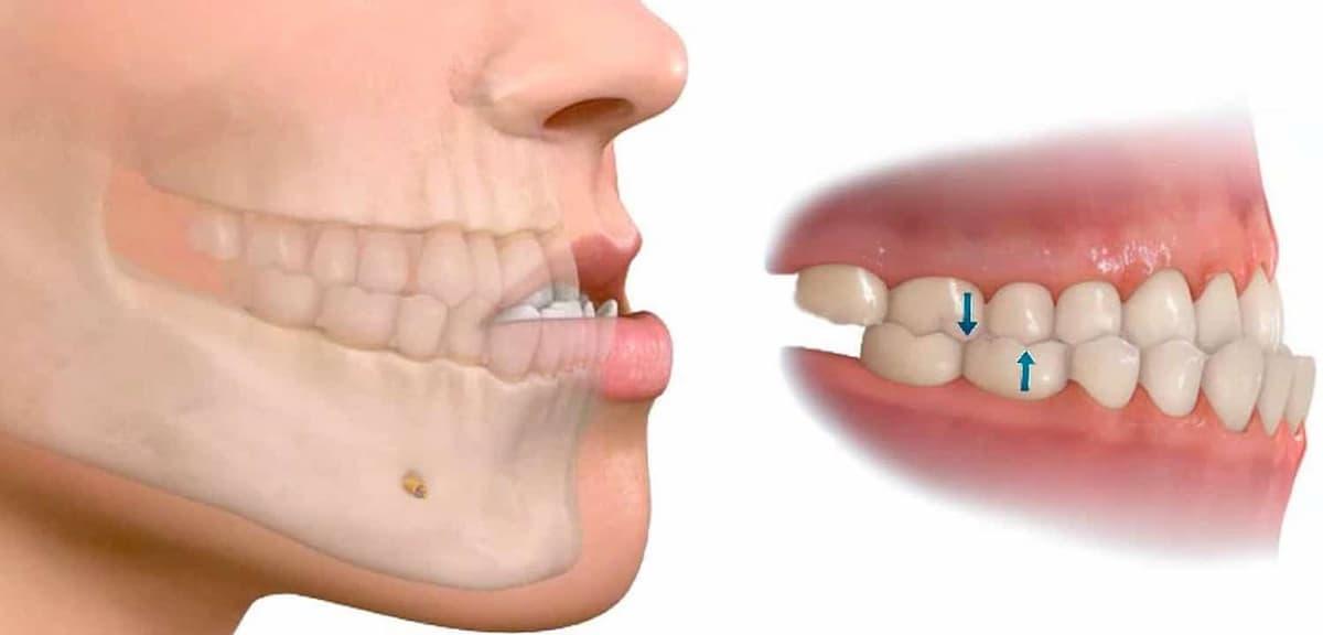 Tratamiento para la mandíbula desencajada o dislocada