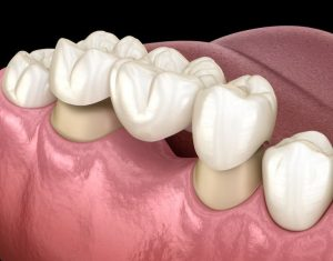 Precio puente dental