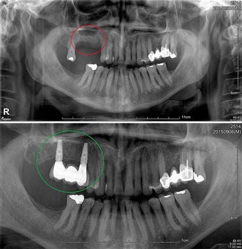 elevacion de seno maxilar 2