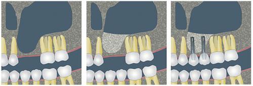 elevacion de seno maxilar